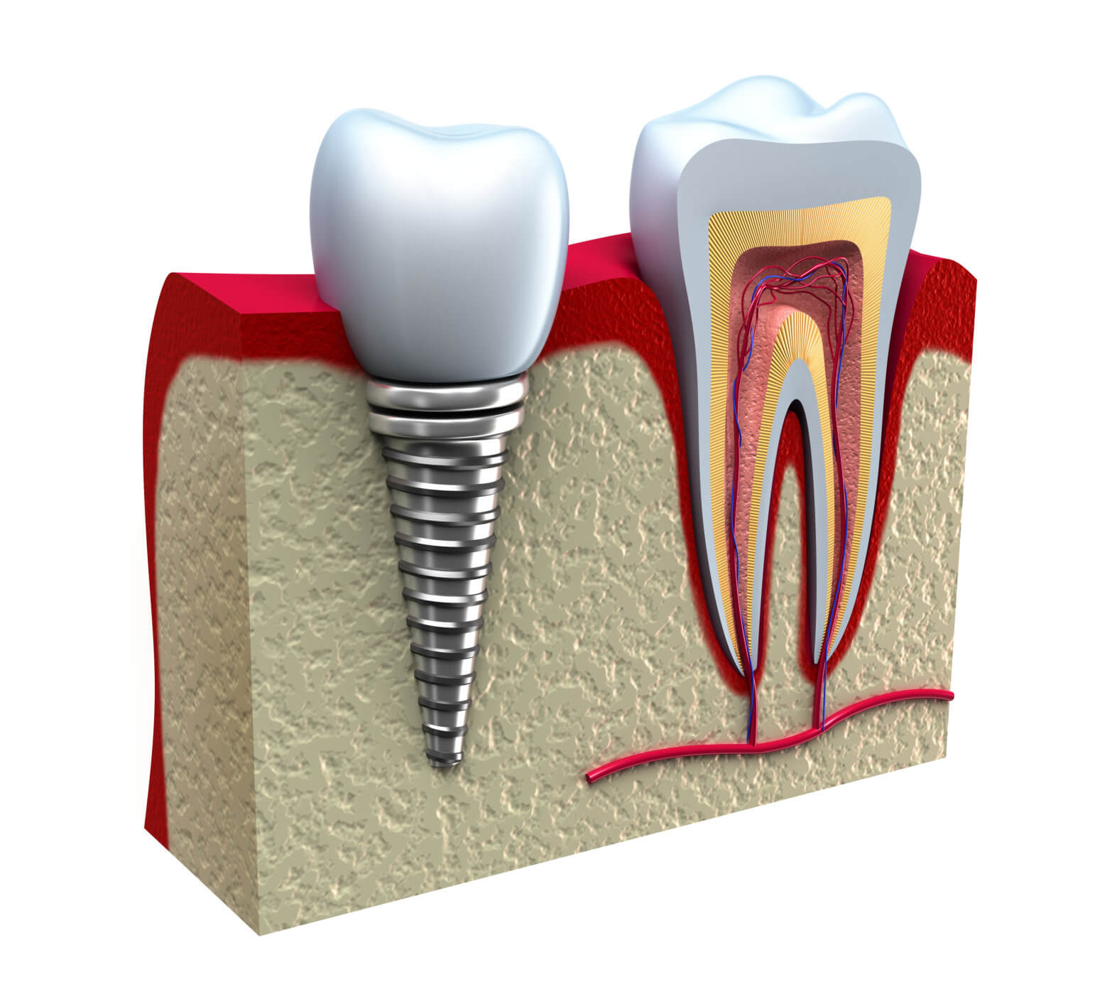 Downtown dental, implants