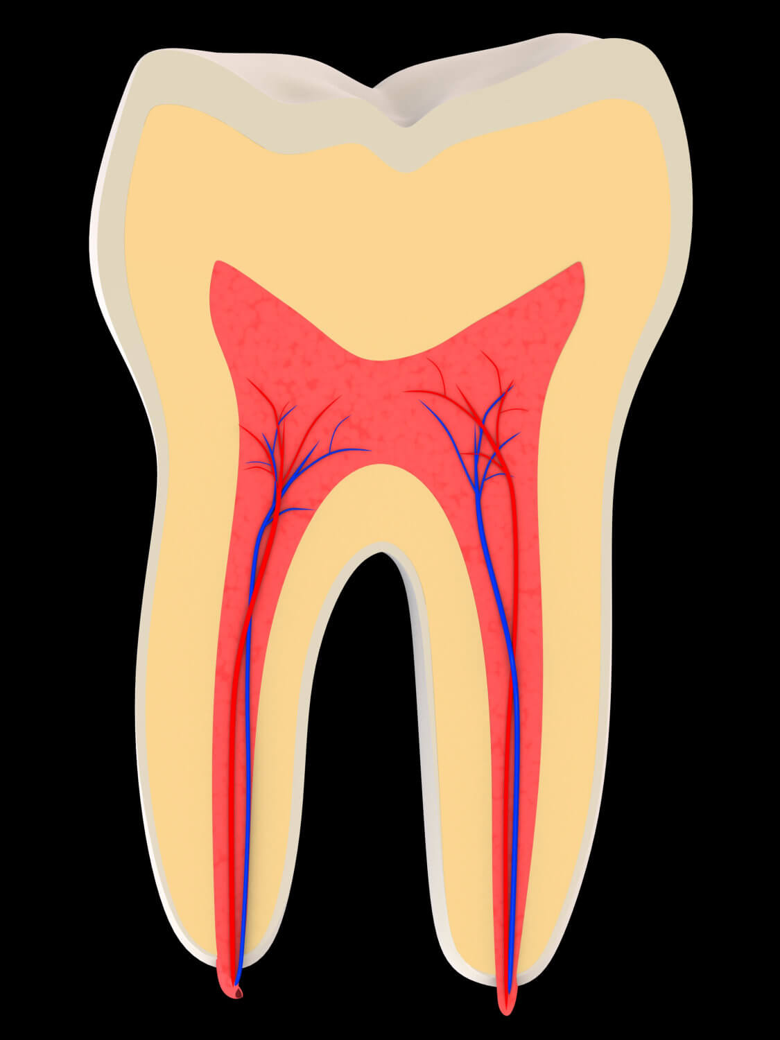 Downtown Dental,root canal