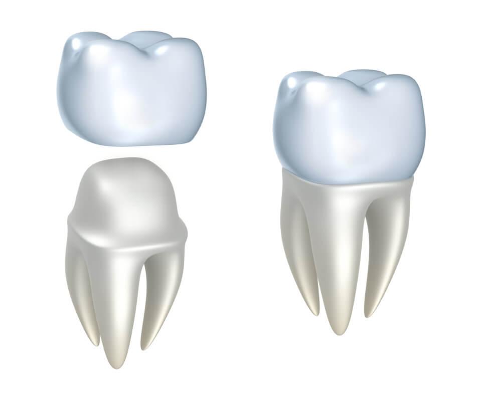 Downtown Dental Crowns