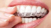 Downtown dental, Orthodontics
